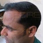 Restore Hair Treatment no pain