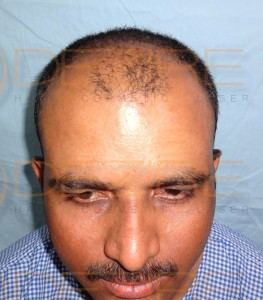 The Hair Surgery