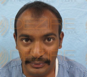 Top Hair Transplant Surgeons In The World