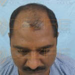 Where To Get A Hair Transplant