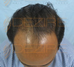 Where To Get A Hair Transplant in Pune