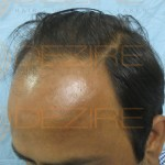 Where To Hair Transplant in Pune