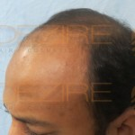 after hair transplant diet