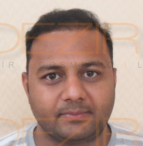 after hair transplant photos