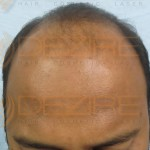 after hair transplant surgery