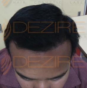 are hair transplant safe