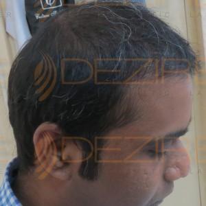 ayurvedic medicines for hair fall