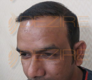bald hair follicles