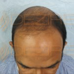 bald hair treatment at home