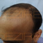 best hair Restoration surgery procedure in india
