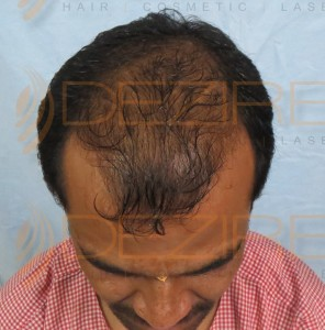 best hair tonic for thinning hair