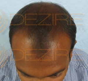 best hair transplant centers in the world