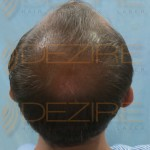 best hair transplant cost