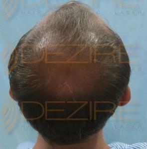 best hair transplant cost