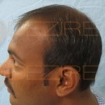 best hair transplant doctors in india