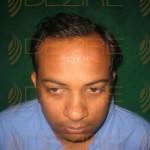 best hair transplant in india quora