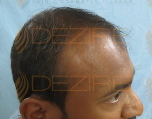 best hair transplant in the world 2016