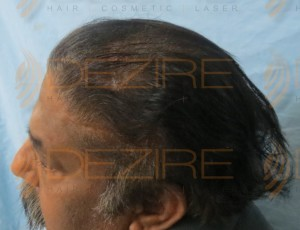 best hair transplant in world