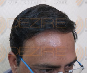 best hair transplant method in india