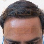 best hair transplant method in the world