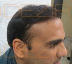 best hair transplant surgeon in India