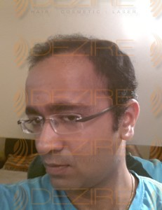 best hair transplant surgeons in india