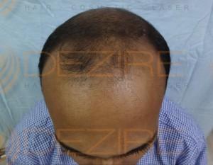 best hair transplant surgery procedure