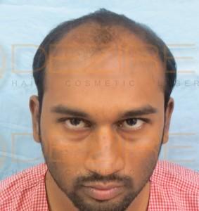 board certified hair restoration surgeons