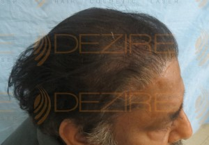 cheapest hair transplant cost in india