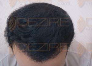 direct hair fusion