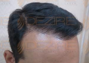 direct hair implantation disadvantages