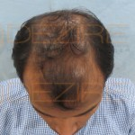 disadvantages of hair transplant surgery