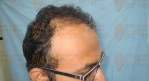 disadvantages of hair transplant surgery