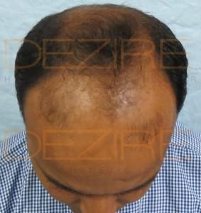 do hair grow after death