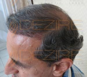 do hair systems work