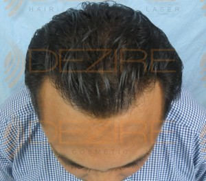 do hair transplants really work