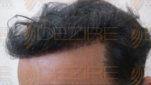 does hair transplant work