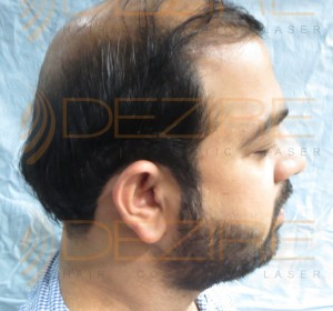 does stem cell hair restoration work
