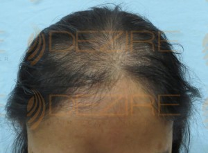 female hair loss treatment diet