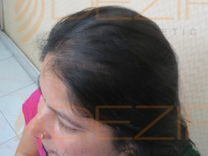 female pattern baldness cure