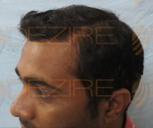 fue hair transplant results after 2 months