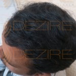 fue hair transplant results after 3 months