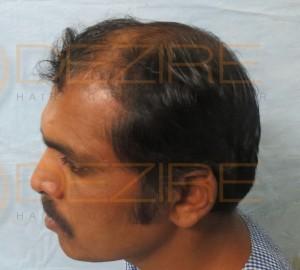 fut hair transplant results