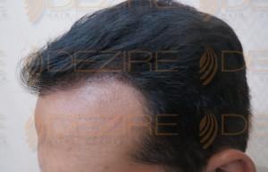 global hair transplant reviews