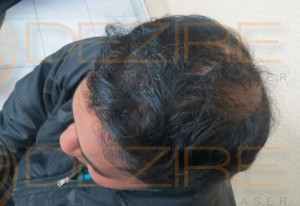 good hair transplants photos
