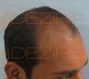 hair doctor name