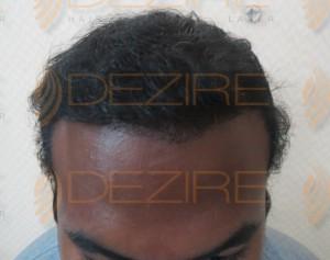 hair follicle infection scalp