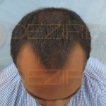 hair loss cure news