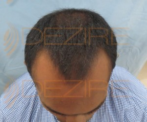 hair loss cure news