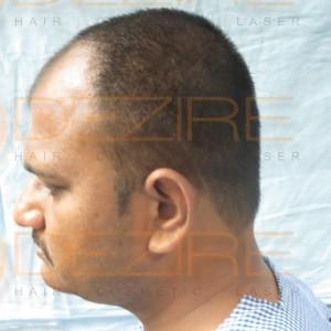 hair plantation price